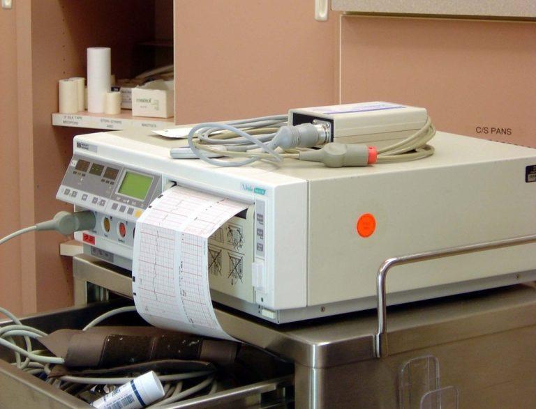 Interpretacje wyniku EKG