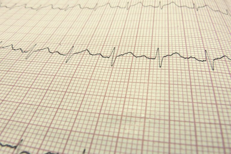 Standardowe EKG
